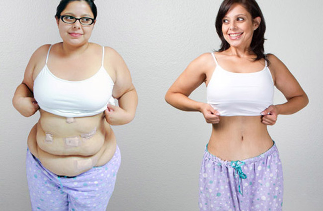 Assessing Weight Control Practices After Bariatric Surgery Can