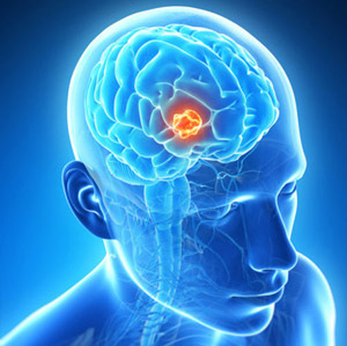 brain tumor research papers Brain tumor information and resources: (brain cancer) symptoms, assistance programs, braintumor diagnosis and brain tumor treatment information: new treatments, virtual brain tumor trial, brain tumor links, important papers: noteworthy treatments for brain tumors, online braintumor support groups, real world brain tumor support groups, brain tumor video, fundraising for brain tumor research.